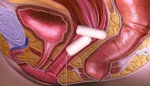 Фото женского органа внутри влагалища порно видео