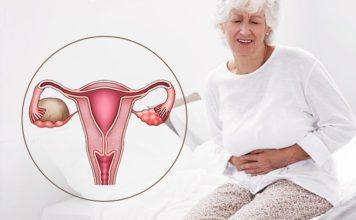 Киста яичника лечение без операции при климаксе